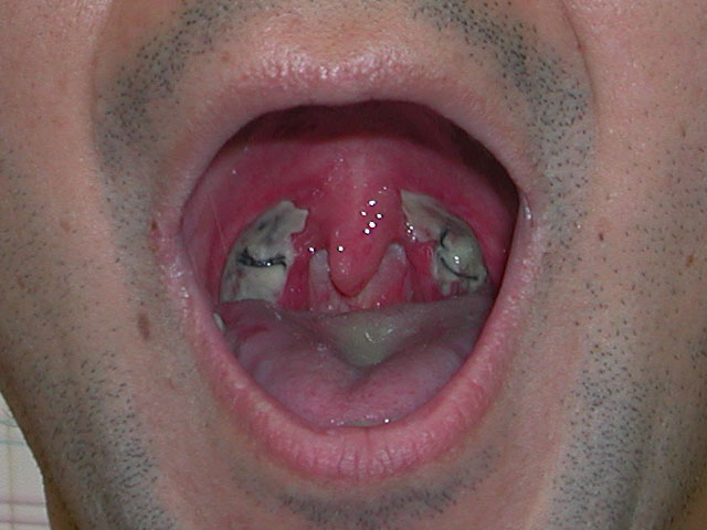 扁桃腺炎症